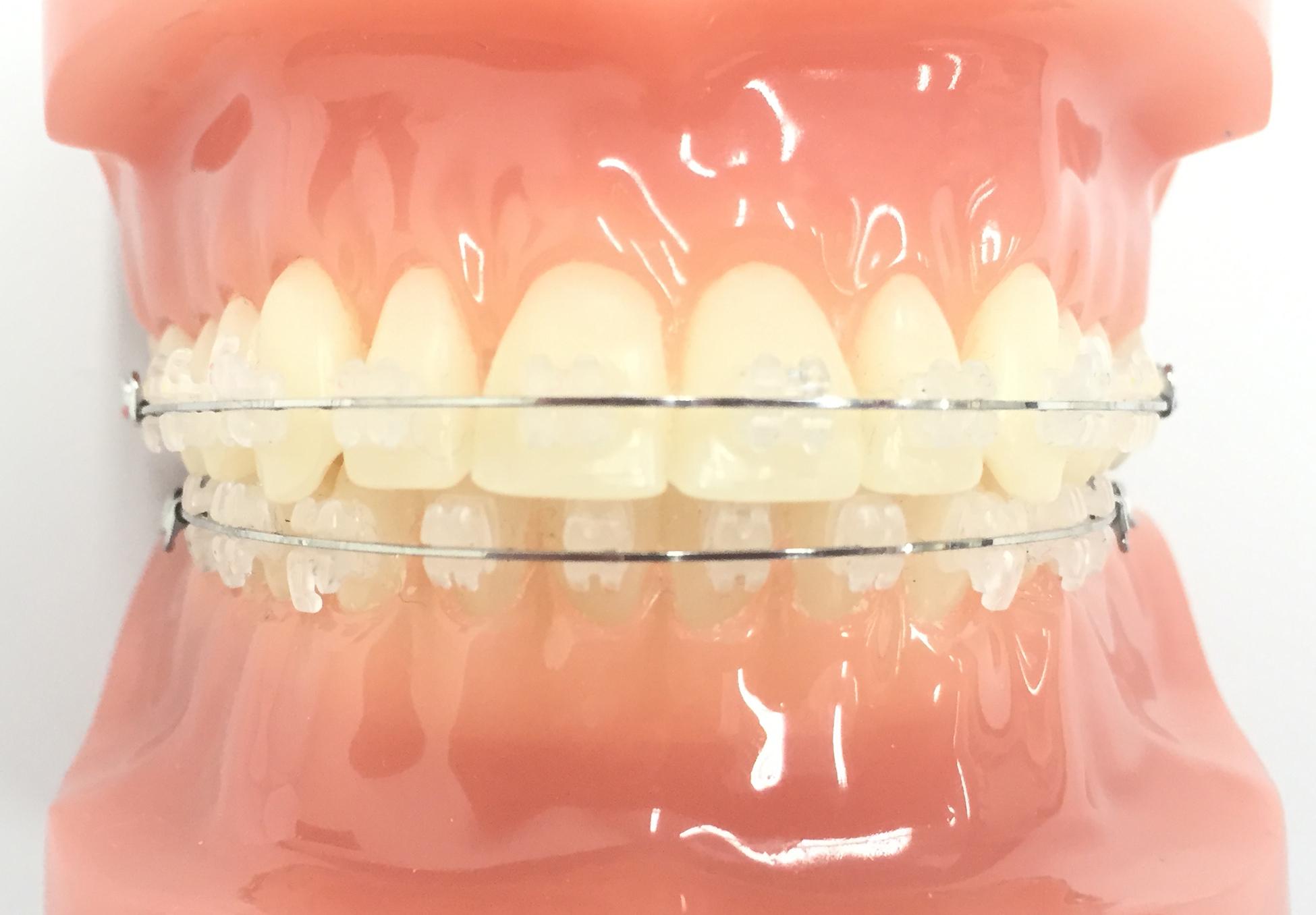表側の歯列矯正