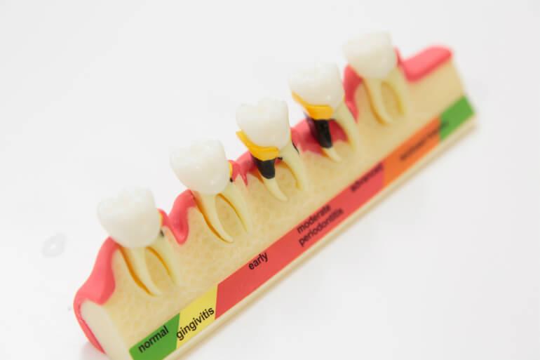当院の虫歯治療の特徴