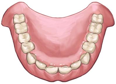 健康保険適用の入れ歯